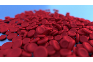 New Iron Deficiency Anemia Treatments 2021